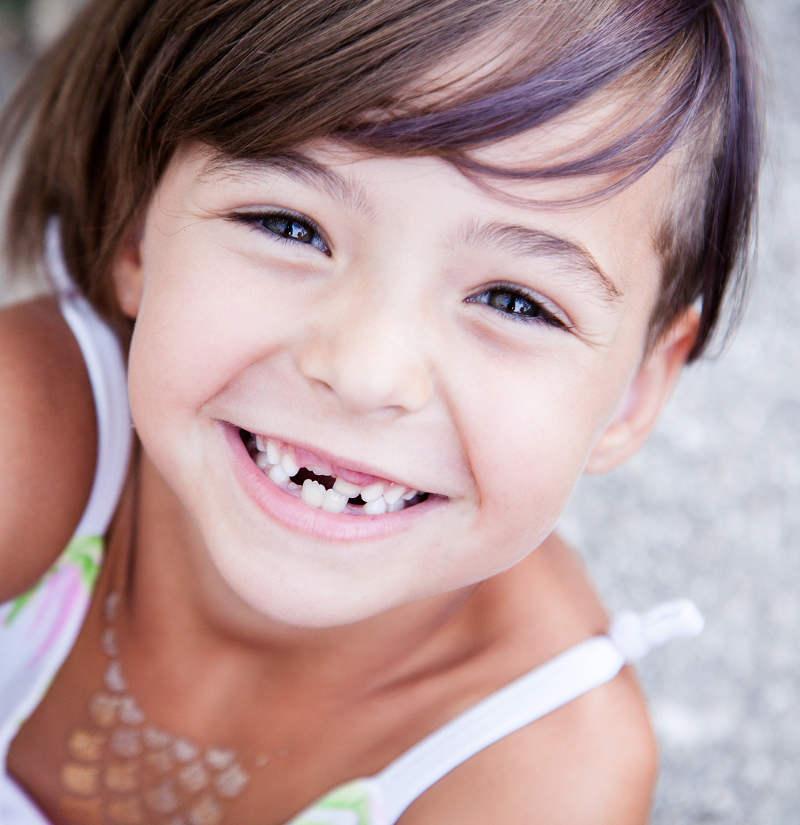 que hacer cuando se nos rompe un diente, clinica infantil valladolid
